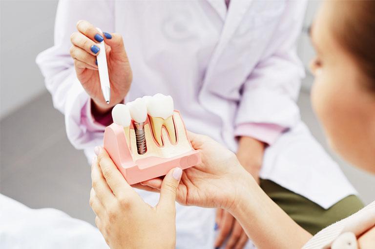 Mitos sobre implantes dentales