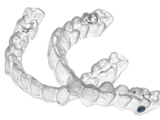 Ventajas de la ortodoncia invisible Invisalign