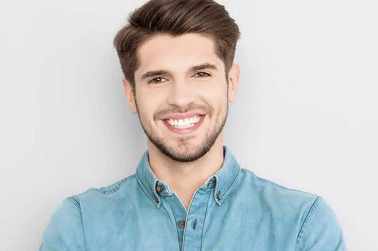 Qué son las carillas de composite Villalaín, tu clínica de ortodoncia en Avilés.
