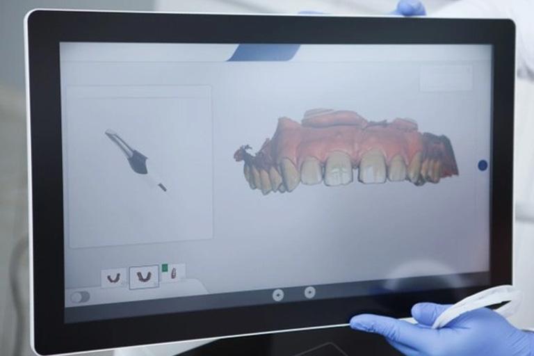 Clínica Villalain. Escáner Intraoral con un modelo de dentadura en pantalla.